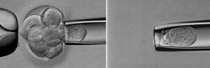 Transfer Embrionario